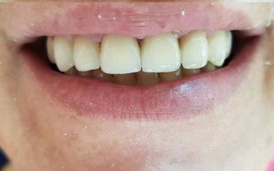 Naša pacijentica sa novim osmijehom